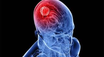 Όγκος στο κεφάλι: Προσοχή σε συμπτώματα, αίτια και παράγοντες κινδύνου