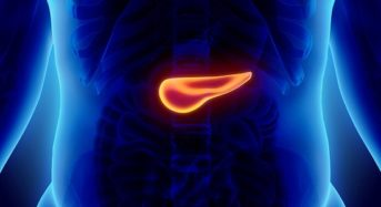 Καρκίνος παγκρέατος: Προσοχή στα ύποπτα συμπτώματα
