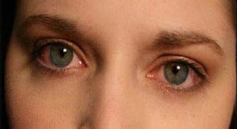 Ποια σημάδια στα μάτια σας αποκαλύπτουν την αύξηση της χοληστερίνης σας;