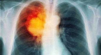 Εγκρίθηκε νέα θεραπεία για τον καρκίνο πνεύμονα